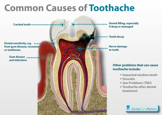 How to Get Rid of a Toothache Naturally 3