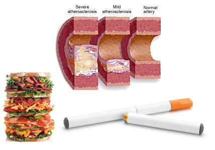 What Are the Causes of High Cholesterol 2